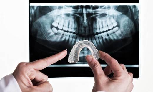 Co to znaczy, że zęby są stłoczone?